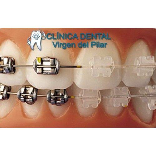 Ortodoncia: Tratamientos de Clínica Dental Virgen del Pilar