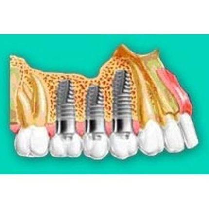 Foto 6 de Clínicas dentales en Ibiza | Clínica Dental Miquel Mayordomo