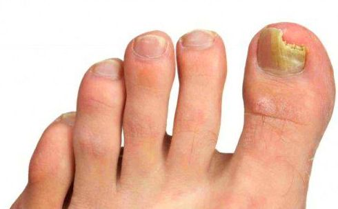 7 remedios caseros para combatir los hongos de las uñas de los pies