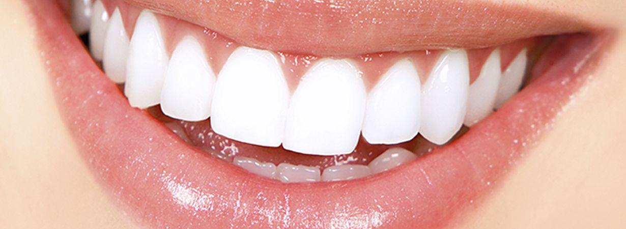 Estética dental: Tratamientos de Ipsum Centro Odontológico