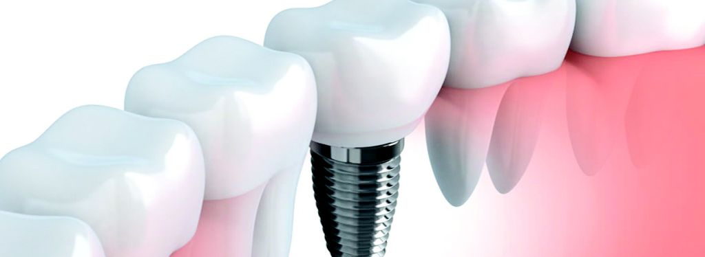 Implantología: Tratamientos de Ipsum Centro Odontológico