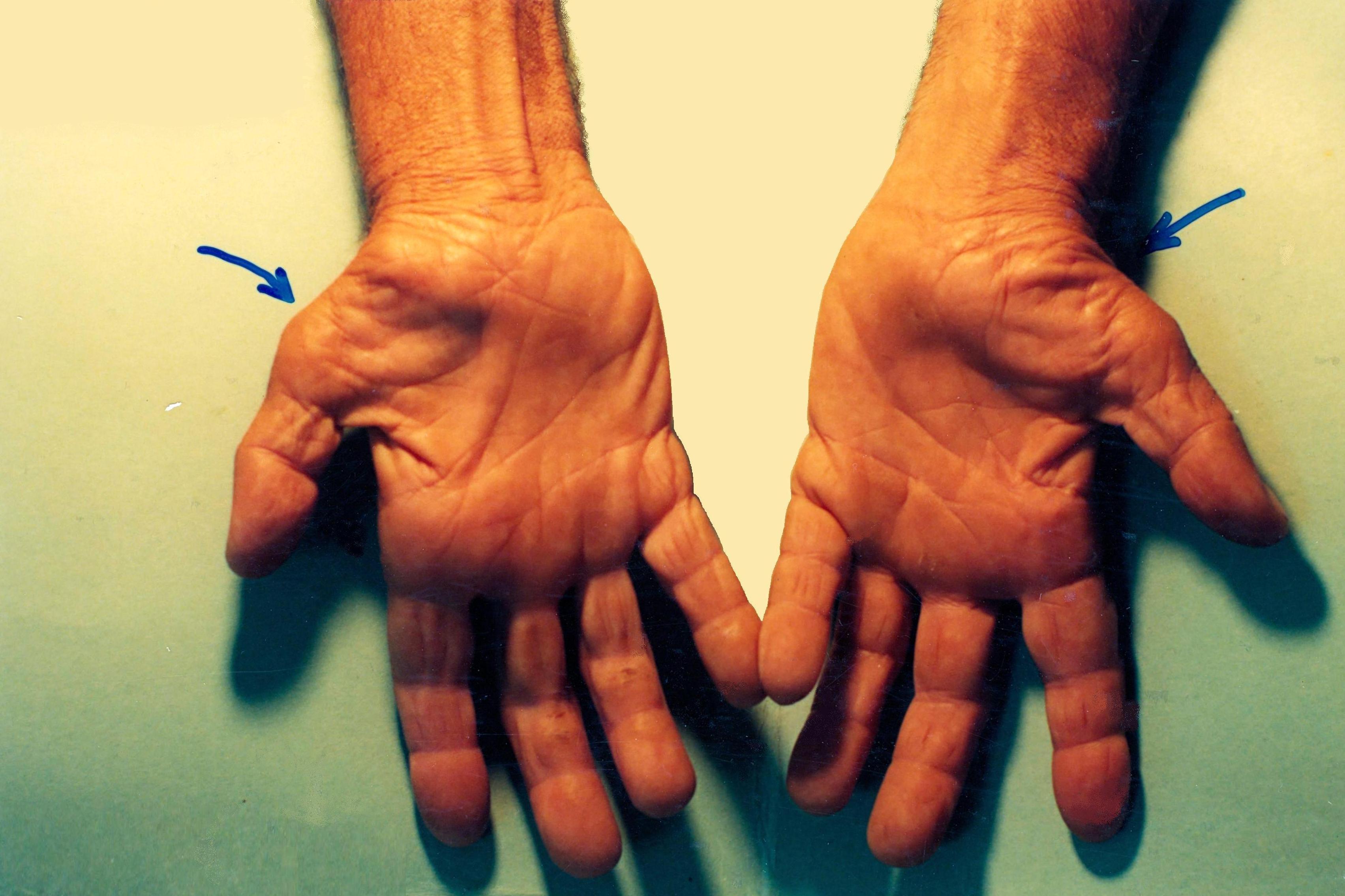 Síndrome del túnel carpiano : Servicios de Clínica Dr. Javier Cerqueiro Cirugía Plástica