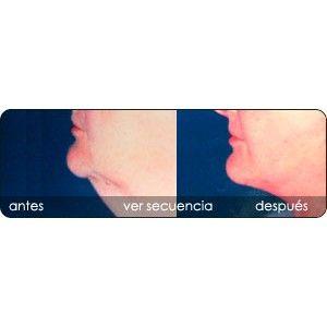 Rejuvenecimiento de cejas y frente: Servicios de Clínica Dr. Javier Cerqueiro Cirugía Plástica