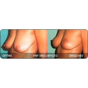 Elevación de los senos o pexia mamaria : Servicios de Clínica Dr. Javier Cerqueiro Cirugía Plástica