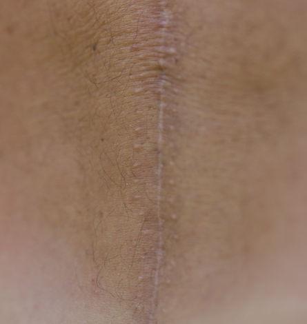 Tratamiento de cicatrices: Servicios de Clínica Dr. Javier Cerqueiro Cirugía Plástica