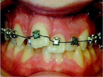 Foto 8 de Dentistas en Chiclana de la Frontera | Clínica de Ortodoncia Dr. Martínez Mariscal