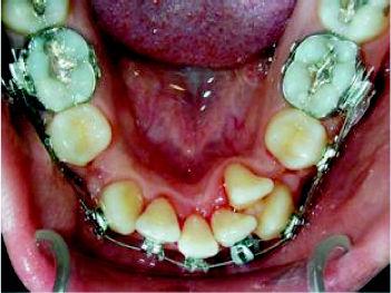 Foto 5 de Dentistas en Chiclana de la Frontera | Clínica de Ortodoncia Dr. Martínez Mariscal