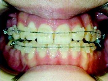 Foto 7 de Dentistas en Chiclana de la Frontera | Clínica de Ortodoncia Dr. Martínez Mariscal