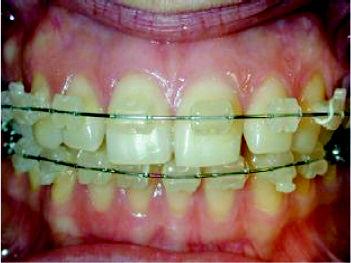Foto 4 de Dentistas en Chiclana de la Frontera | Clínica de Ortodoncia Dr. Martínez Mariscal