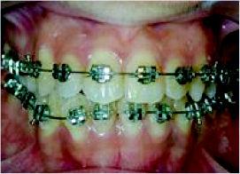 Foto 1 de Dentistas en Chiclana de la Frontera | Clínica de Ortodoncia Dr. Martínez Mariscal