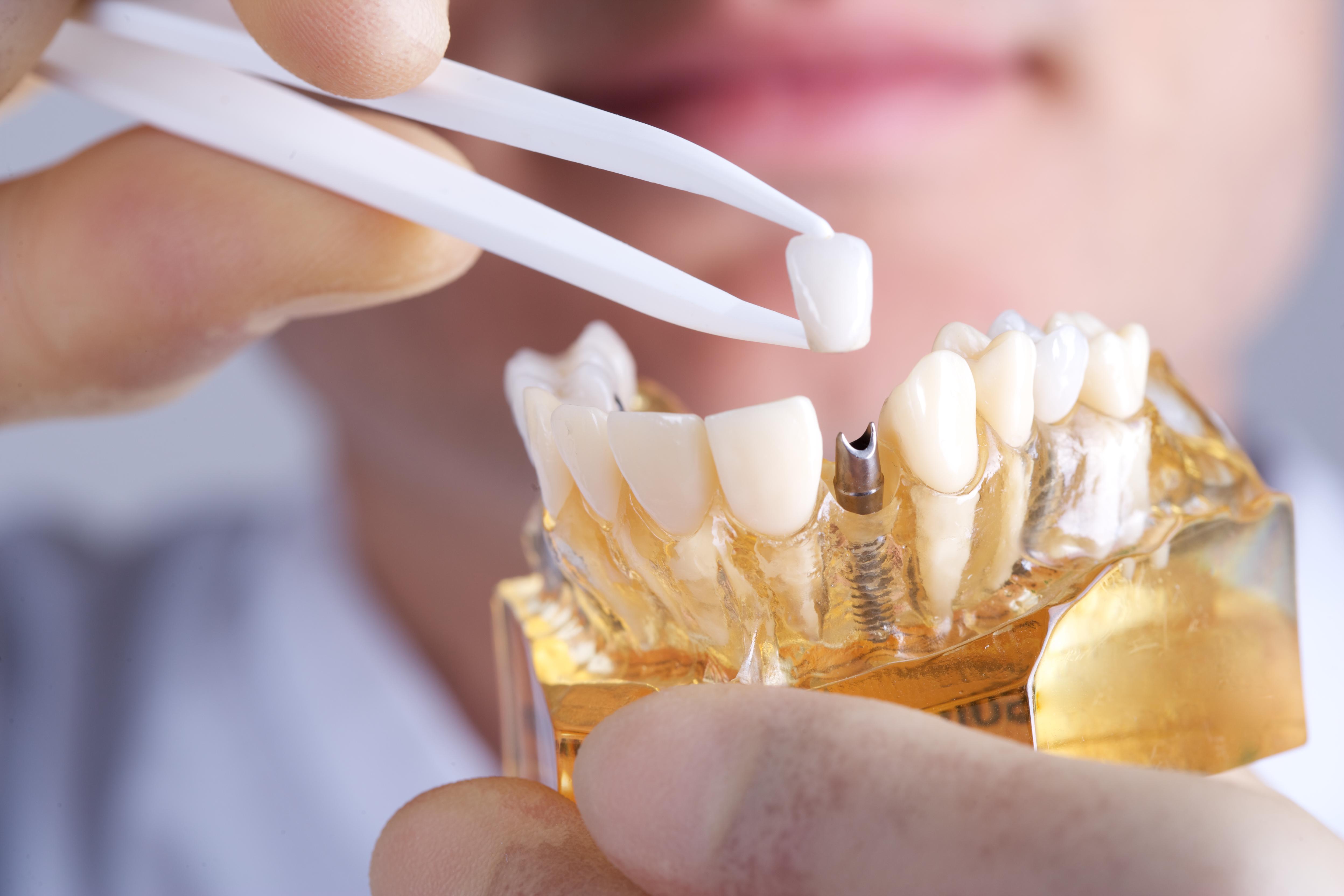 Fijas : Especialidades  de Clínica Dental Baviera