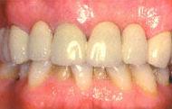 Implantes, después del tratamiento
