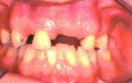 Implantes, antes del tratamiento