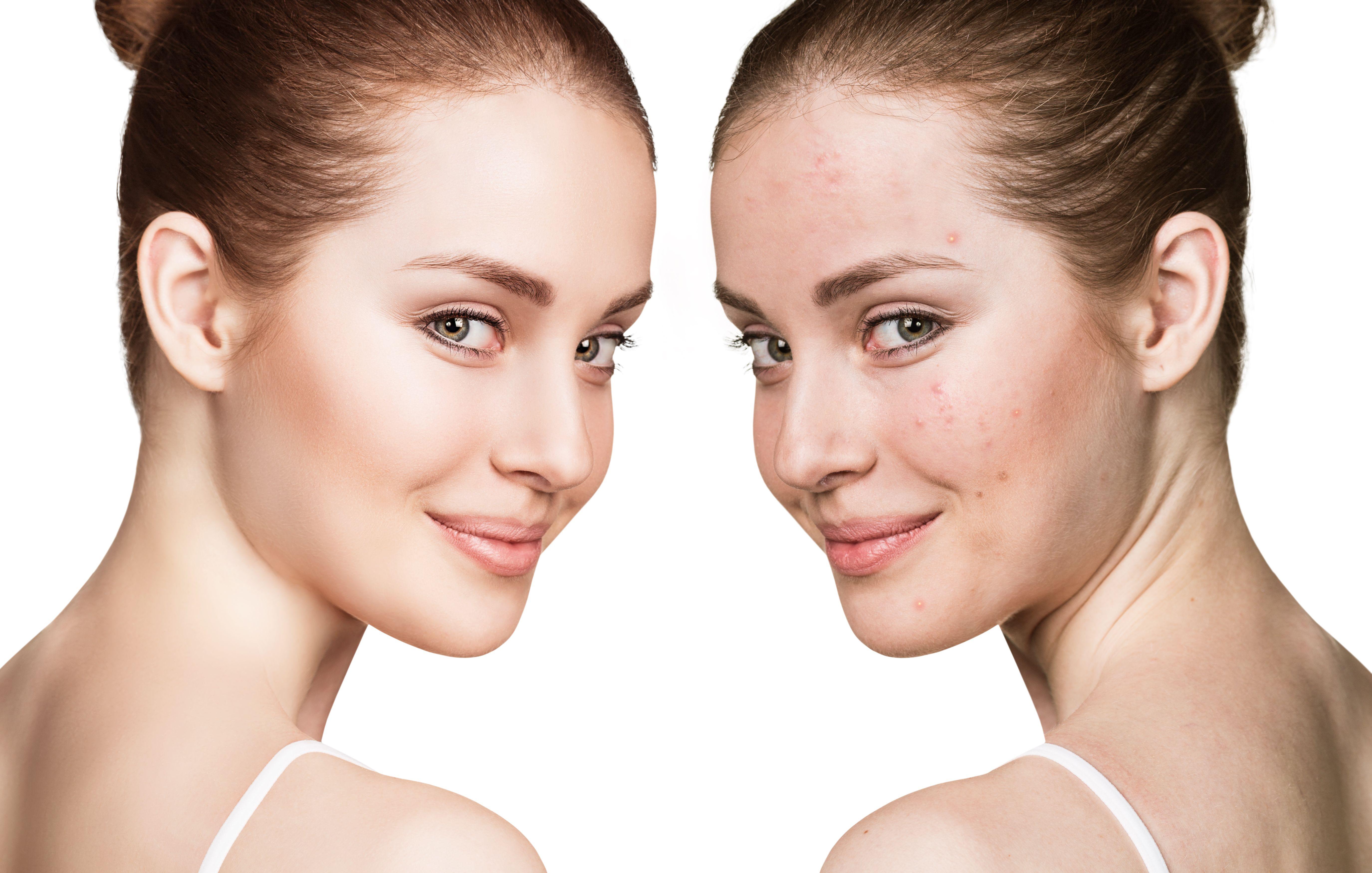 Línea biológica para pieles acneicas: Tratamientos de Vida con Estética
