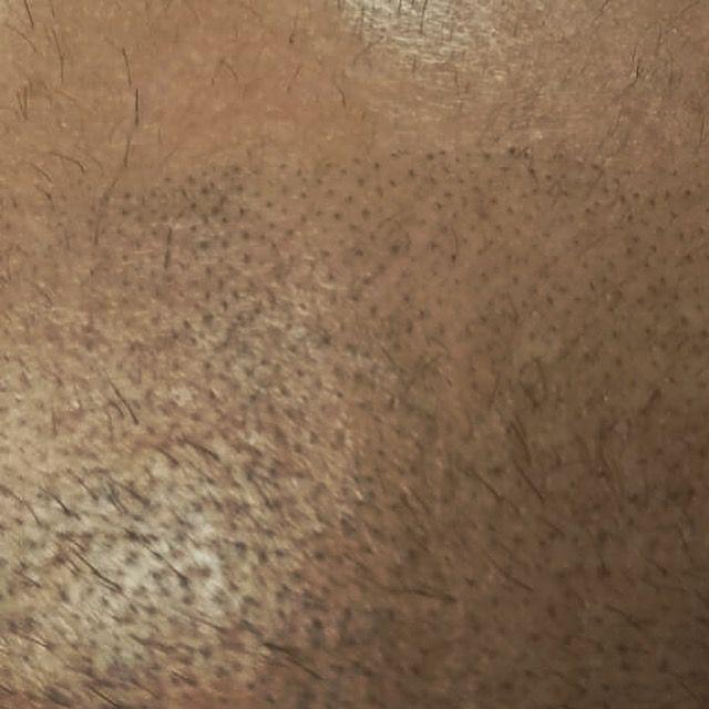 Tricopigmentación: ¿Qué hacemos? de Marca Sacra Tattoo Studio