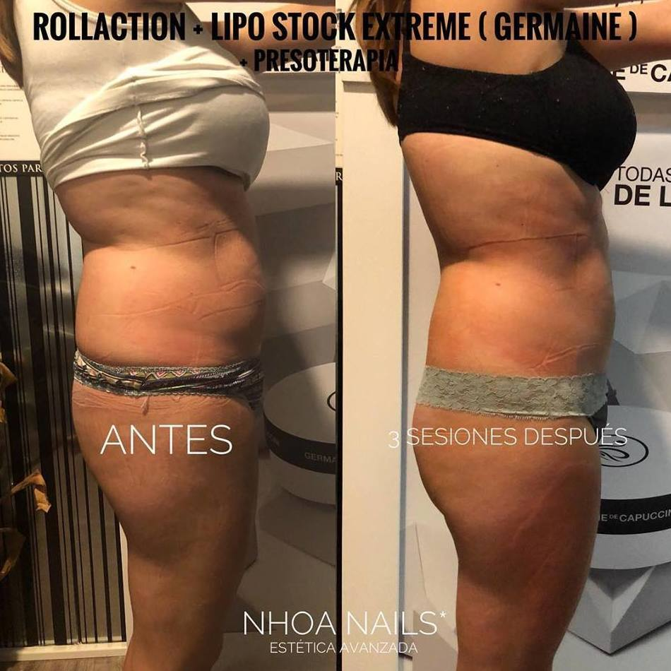 Tratamientos corporales reductores-anticelulítico-reafirmante: Products de Nhoa Nails*