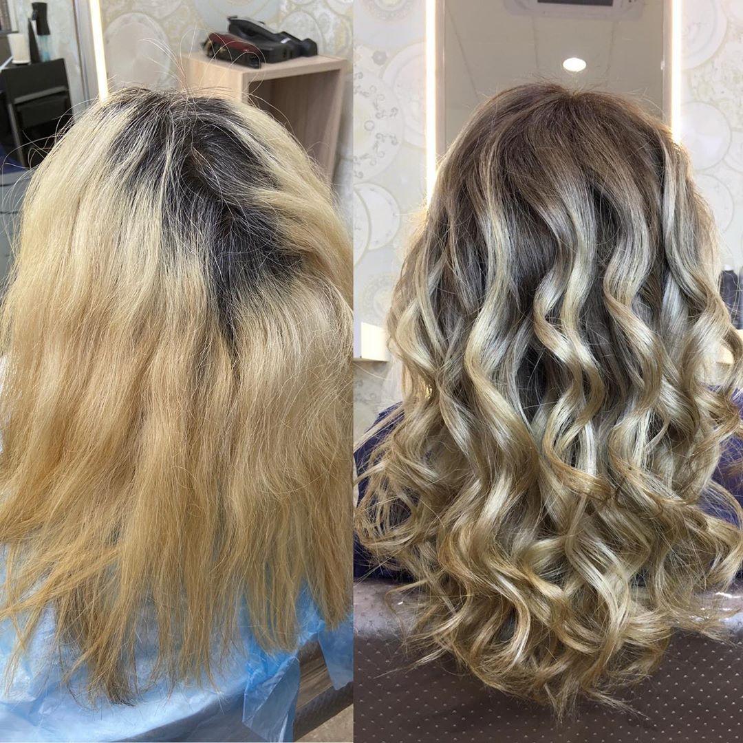 Recuperación de cabello con resultado espectacular