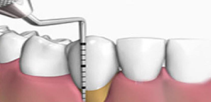 Periodoncia : Tratamientos  de Clínica Dental Sabedent