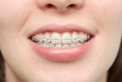 Ortodoncia : Tratamientos  de Clínica Dental Sabedent