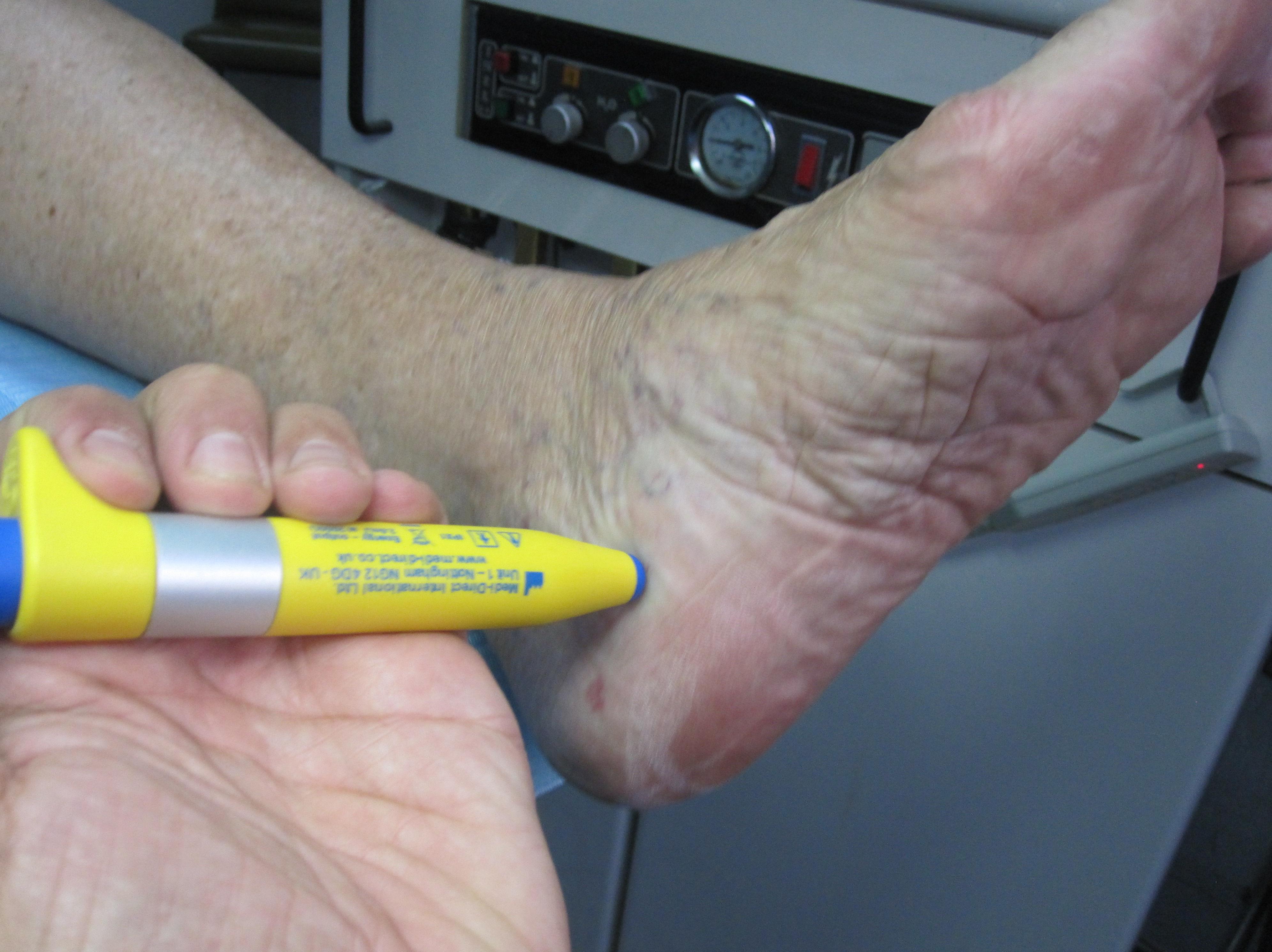 terapeutica electromagnetica para el dolor