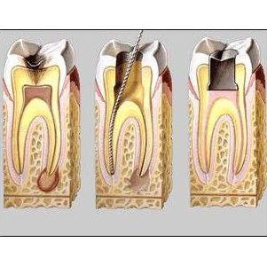 Endodoncia: Odontología: servicios de Clínica  Dental Leticia Lenguas