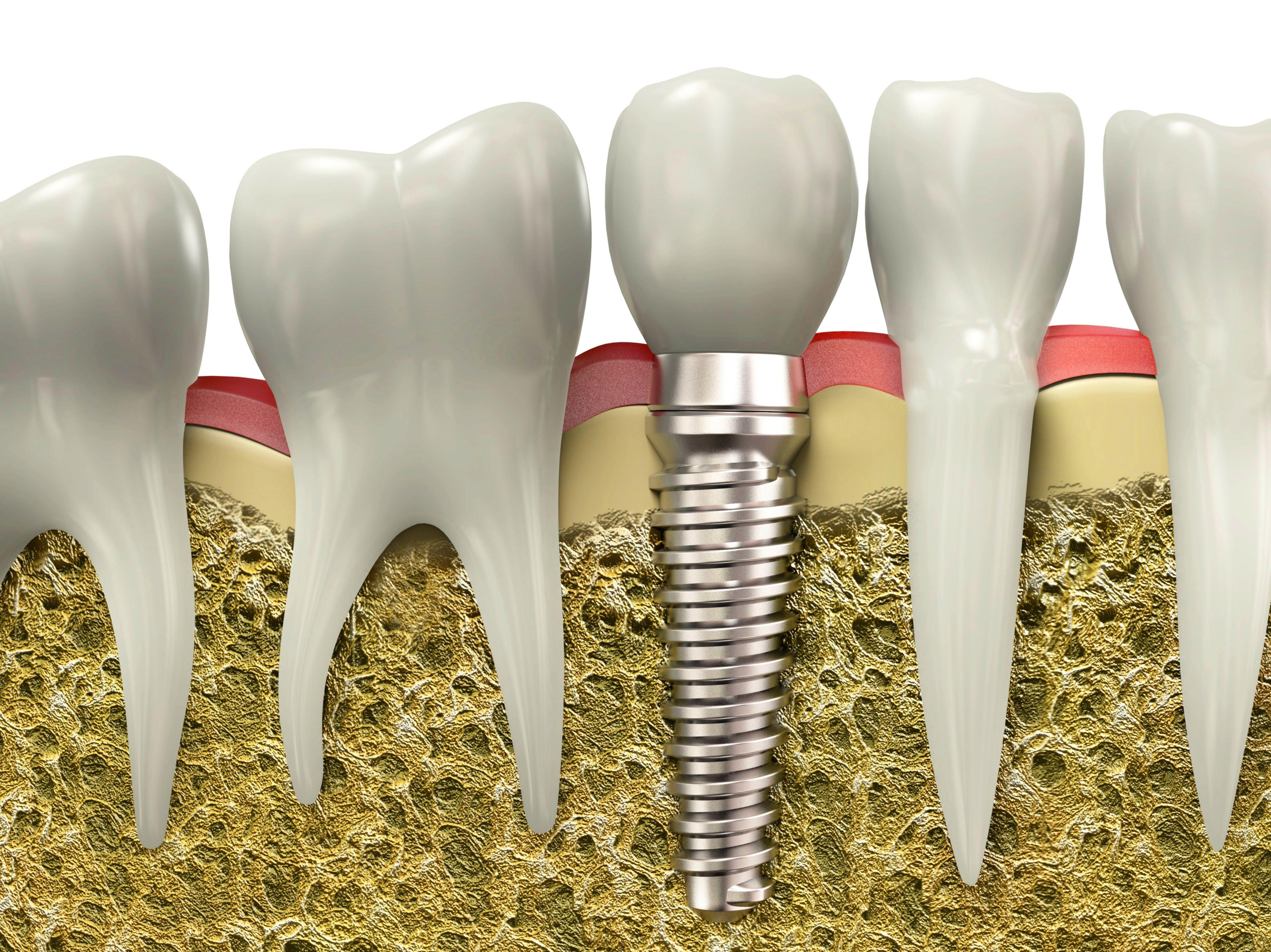 Foto 9 de Clínicas dentales en Granada | Clínica Dental Sur