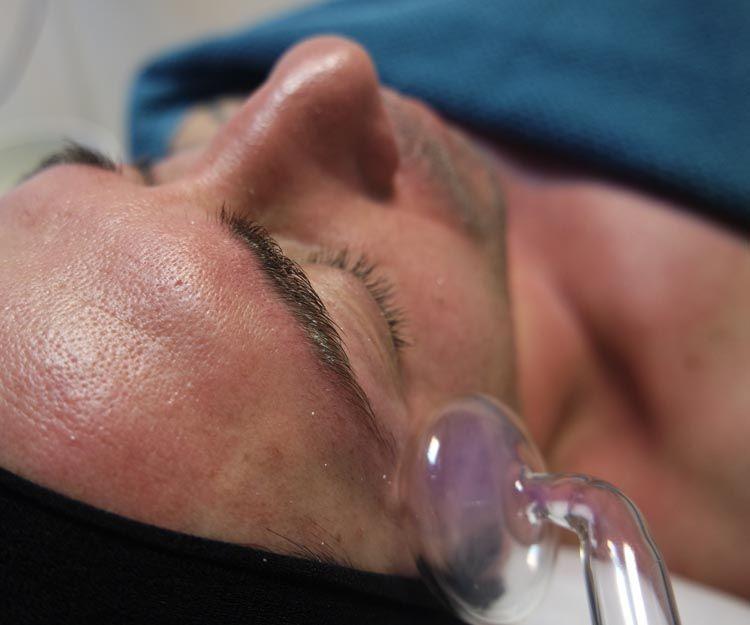 Tratamientos faciales para hombres en Málaga