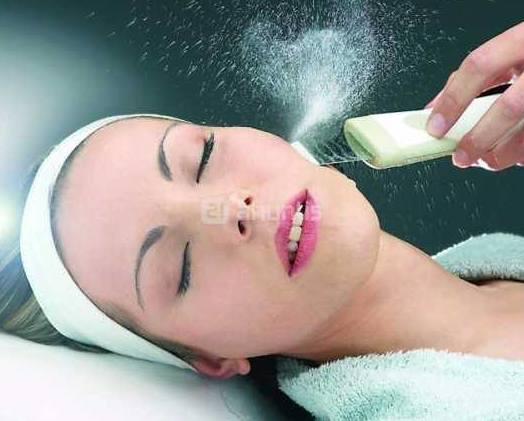 Peeling ultrasónico
