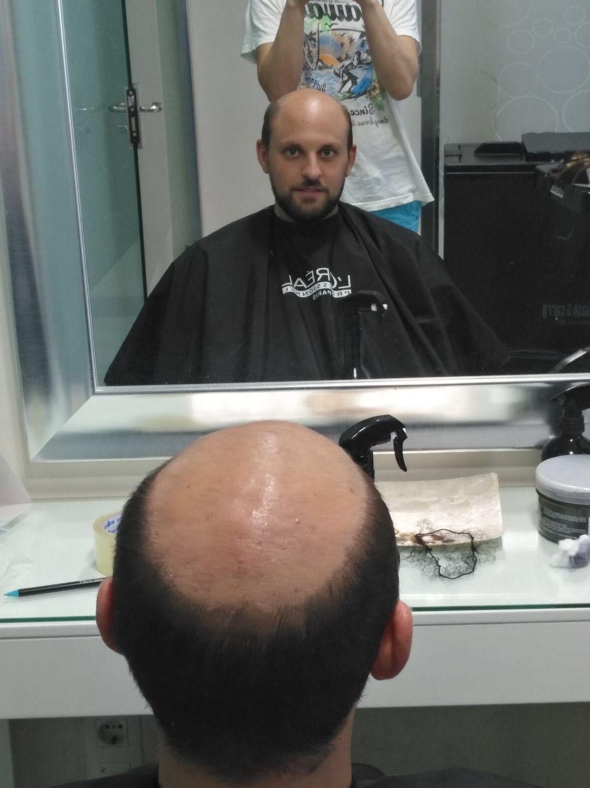 Venta y colocación de pelucas