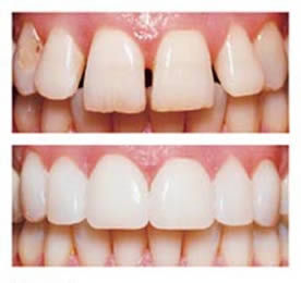 Foto 4 de Dentistas en Bueu | Insadent - Centro Odontológico