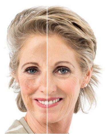 IPL fotorejuvenecedor facial: Tratamientos de Centro de Belleza y Bienestar Izaskun