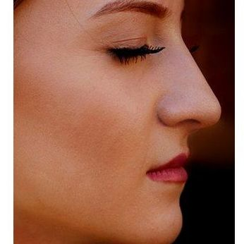 Arrugas: Tratamientos de Palma Estetic Dr. Antonio Jiménez Martorell