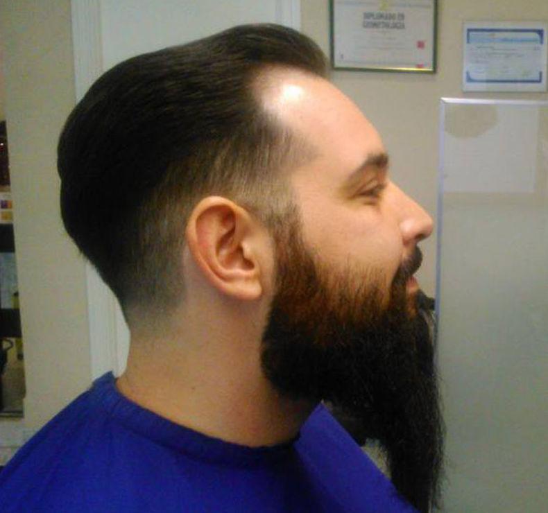 Arreglo de barba en Torrejón de Ardoz