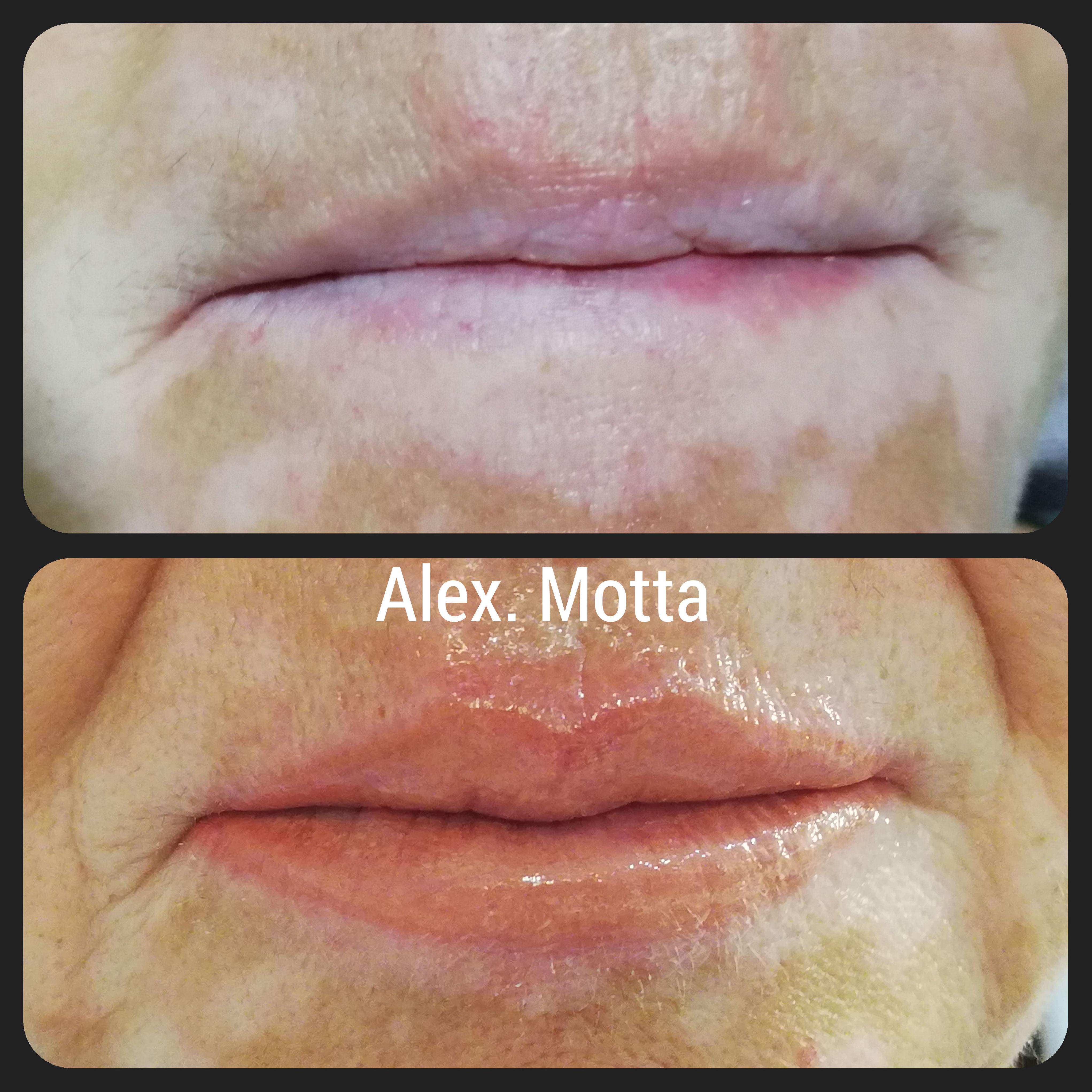 Micropigmentacion labios vitiligo