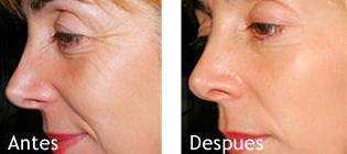 Radiofrecuencia Facial : Serveis i tractaments de SILVIA BACHES MINOVES