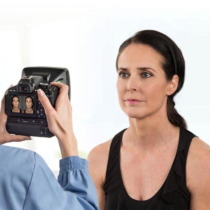 Diagnóstico facial con la cámara Vectra H1 (Canfield): Tratamientos   de BA Clíniques - Denia