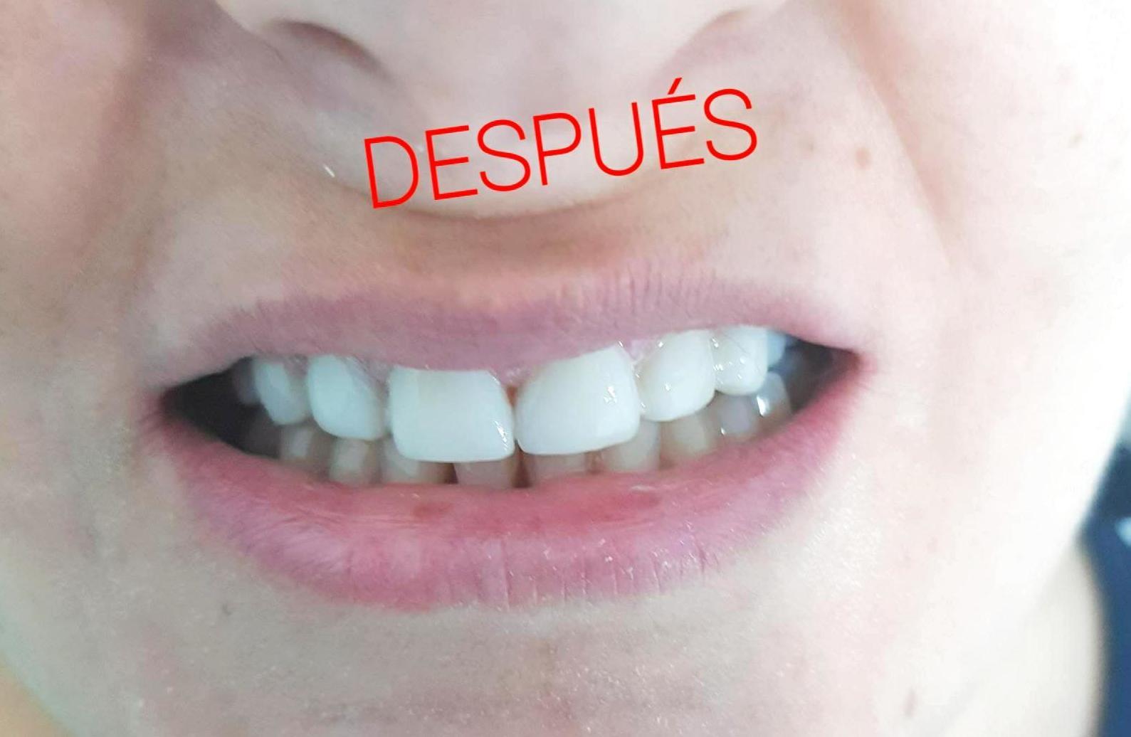 DENTISTAS EN MOSTOLES.