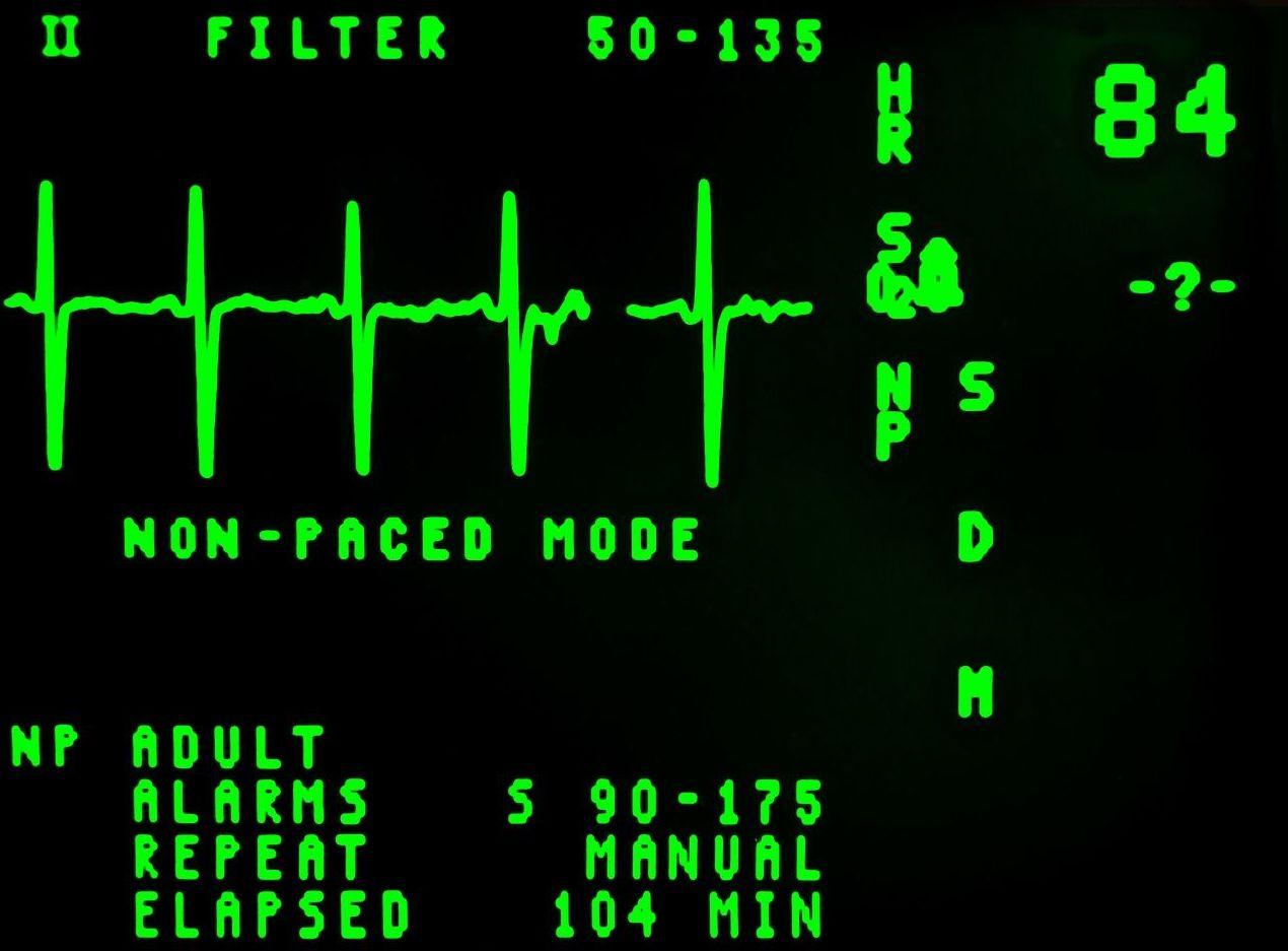 Cardiólogos en Gijón