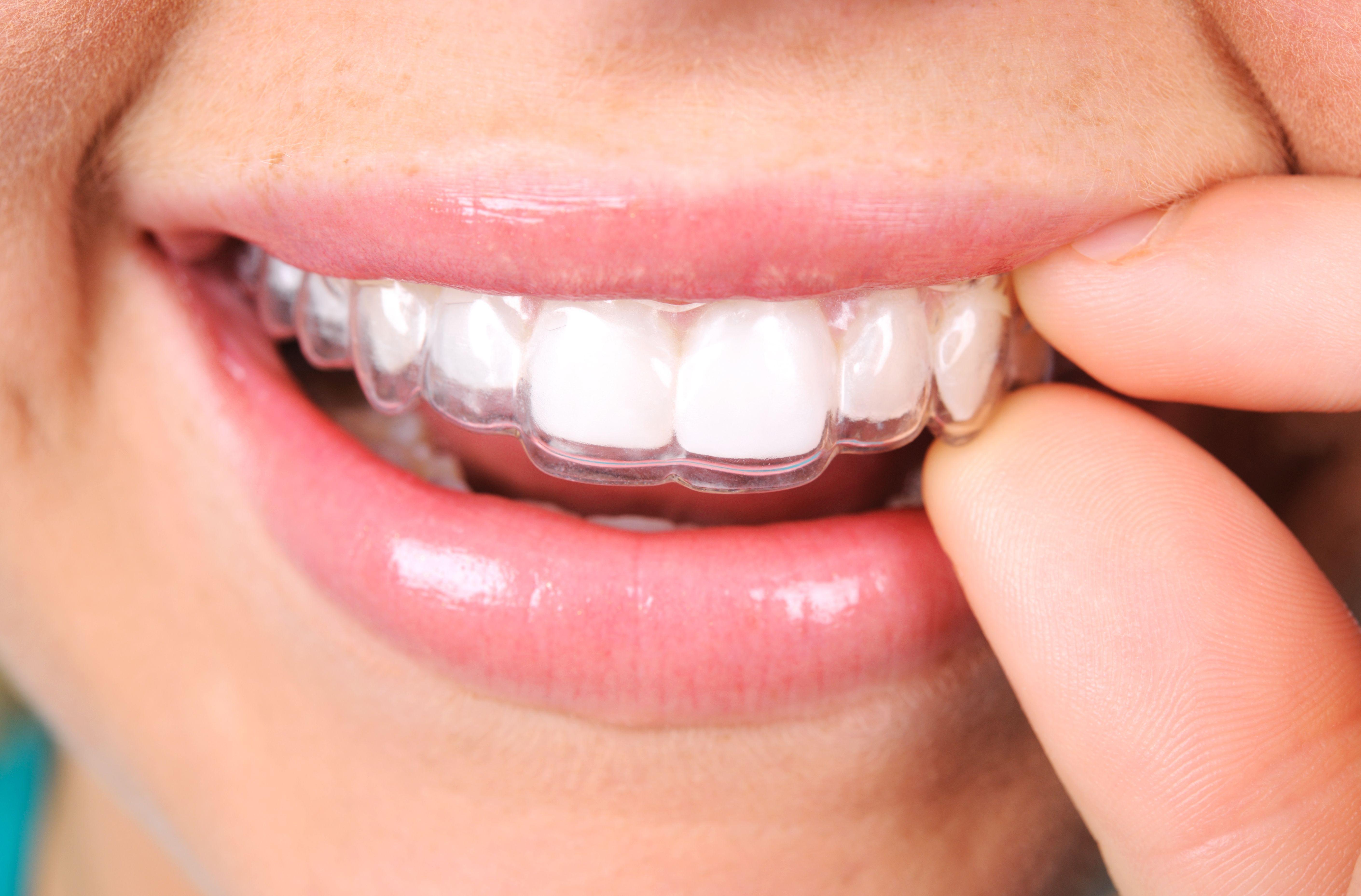 Ortodoncia invisible: Especialidades  de Clínica Dental Vistalegre