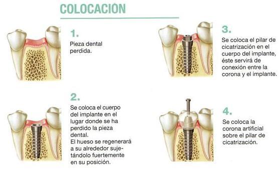 Implantes: Especialidades  de Clínica Dental Vistalegre