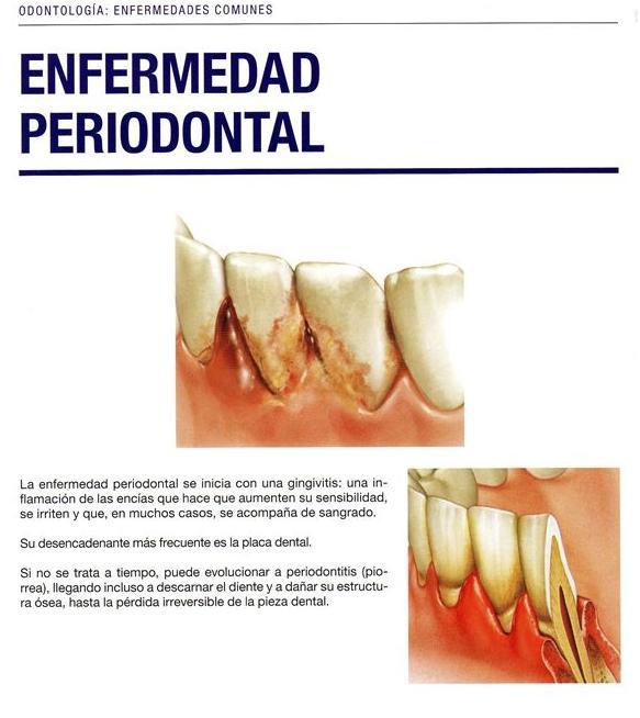 Enfermedad periodoncial: Especialidades  de Clínica Dental Vistalegre