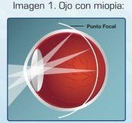 Miopía: Catálogo de Visual Tegueste Ópticos