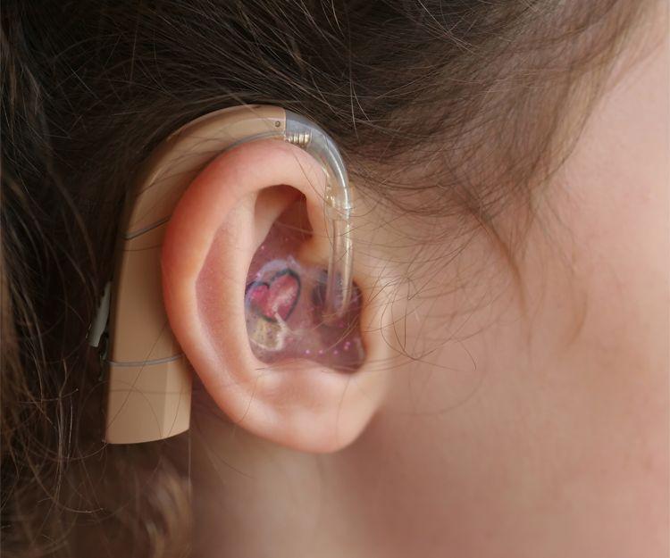 Adaptación de audífonos a medida