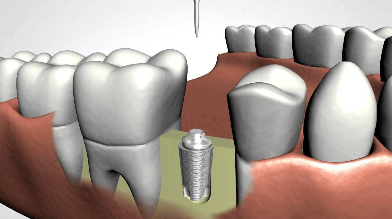 Implantes dentales: Especialidades de Clínica Dental Castellbisbal