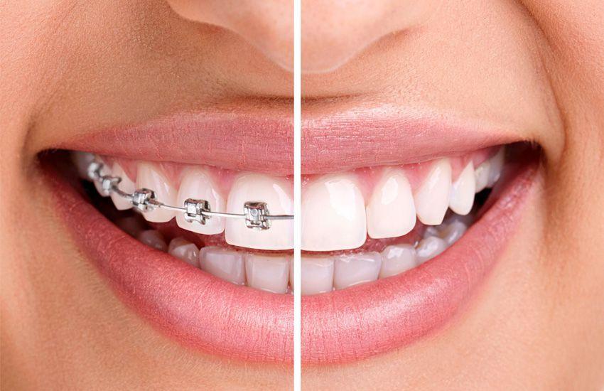 Ortodoncia: Tratamientos de Clínica dental Vall Hebrón