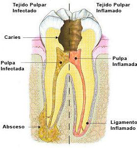Porque nos aparece un dolor repentino en un diente?