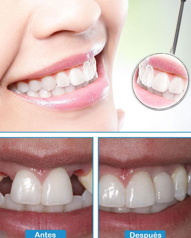 Rehabilitacion oral: Tratamientos de Clínica dental Vall Hebrón