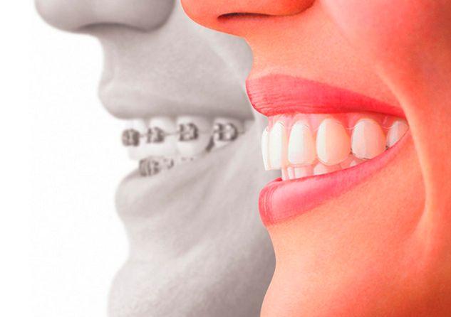 Ortodoncia: Tratamientos de Clínica EasyDent