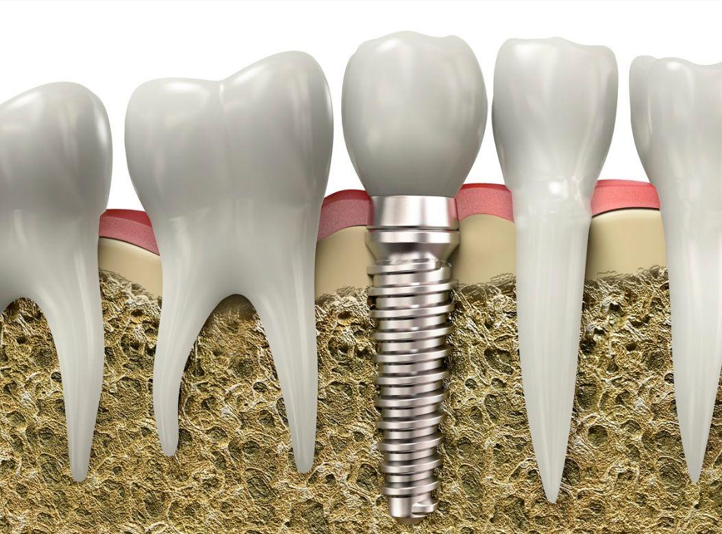 Implantes: Tratamientos de Clínica EasyDent