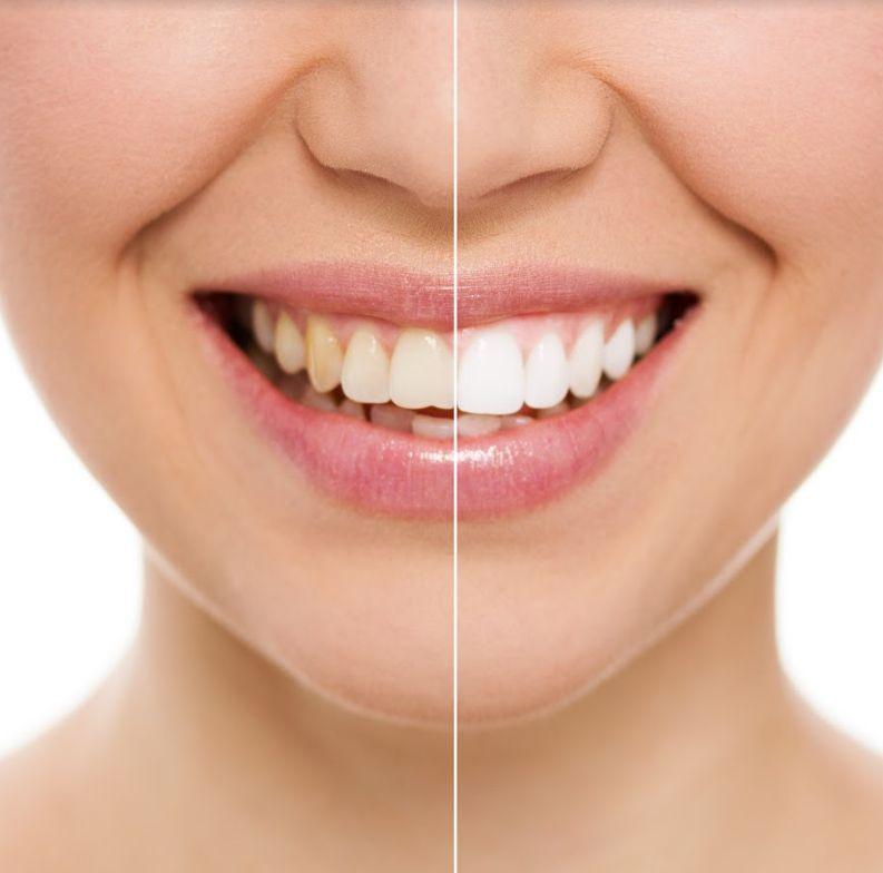 Tratamientos dentales en Palma de Mallorca